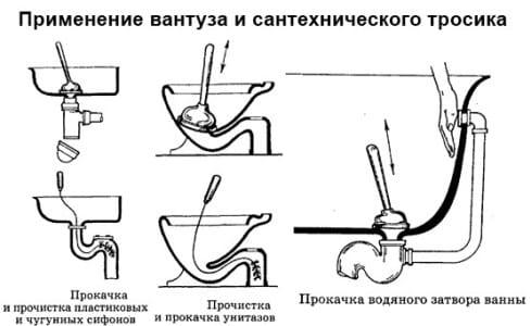 Схема использования вантуза