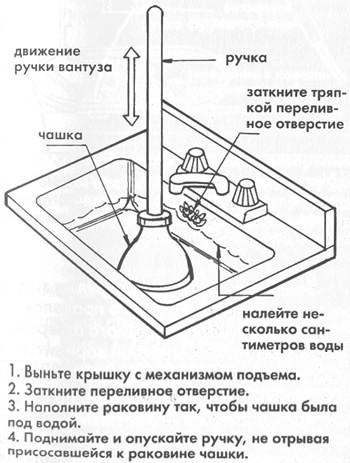 как использовать вантуз
